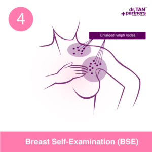 breast-self-examination-bse