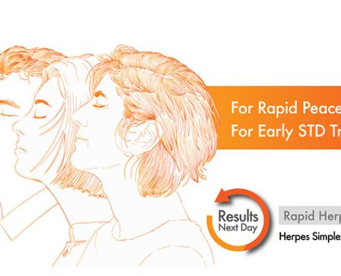 Rapid HSV Test