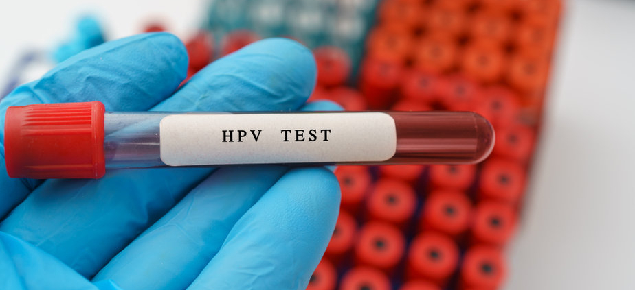 HPV test result with blood sample in test tube on doctor hand in medical lab